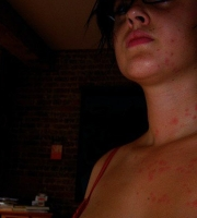 bed-bugs-bites-chest-female