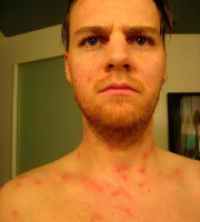 neck-chest-bed-bug-bites-pictures